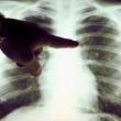 Városház téri szakrendelő - Tüdőgondozó